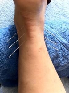 acupuntcure